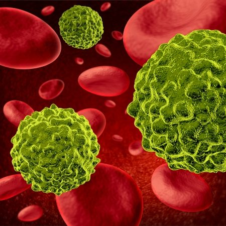 11221491 - cancer cells spreading and growing through the body via red blood cells as malignant cells in a human body caused by environmental carcinogens and genetic causes as tumors and cell damage are treated to cure the disease.