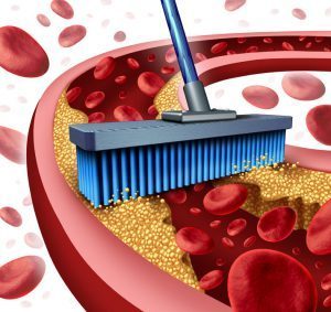 27869220 - cleaning arteries concept as a broom removing plaque buildup in a clogged artery as a symbol of atherosclerosis disease medical treatment opening clogged veins with blood cells as a metaphor for removing cholesterol as an icon of vascular diseases